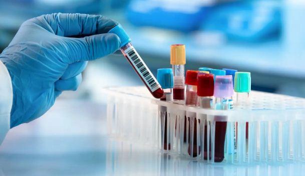 अब ब्लड टेस्ट से पता लग जाएगा 50 तरह के कैंसर का, बीमारी की लोकेशन भी जान पाएंगे