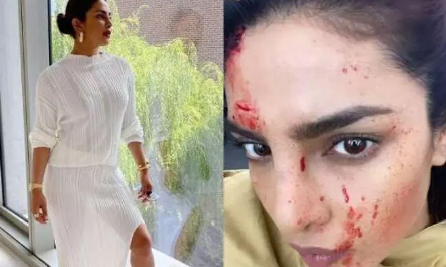 बड़ा हादसा: बॉलीवुड की मशहूर अभिनेत्री प्रियंका चोपड़ा को लगी चेहरे पर चोट, जानें कैसे
