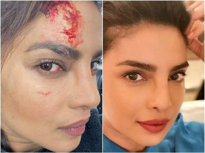 Accident: Priyanka Chopra को शूटिंग के दौरान लगी भयानक चोट, तस्वीर शेयर …कर बताया …