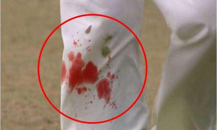 Ind vs Eng: लहूलुहान घुटने के साथ ये दिग्गज करता रहा गेंदबाजी, जुनून शायद इसी को कहते है
